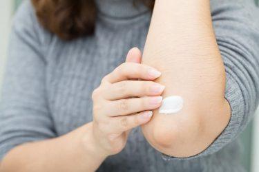 10 remedios caseros para aliviar la dermatitis atópica